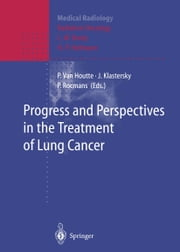 Progress and Perspective in the Treatment of Lung Cancer ebook by Paul Van Houtte,L.W. Brady,J. Klastersky,H.-P. Heilmann,P. Rocmans