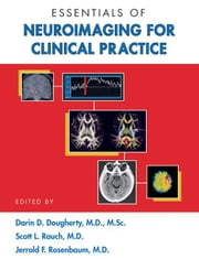 Essentials of Neuroimaging for Clinical Practice ebook by Dougherty, Darin D.