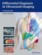Differential Diagnosis in Ultrasound Imaging - A Teaching Atlas ebook by Guenter Schmidt