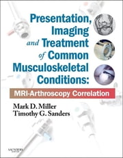 Presentation, Imaging and Treatment of Common Musculoskeletal Conditions - MRI-Arthroscopy Correlation ebook by Mark D. Miller,Timothy G. Sanders