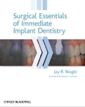 Surgical Essentials of Immediate Implant Dentistry ebook by Jay R. Beagle