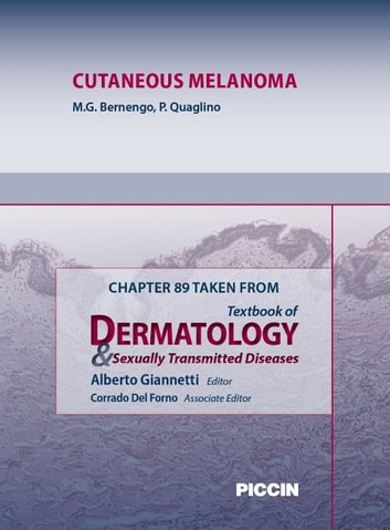 Chapter 89 Taken from Textbook of Dermatology & Sexually Trasmitted Diseases - CUTANEOUS MELANOMA ebook by A.Giannetti,M.G. Bernengo,P. Quaglino