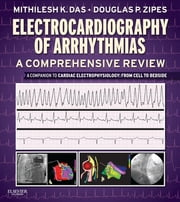 Electrocardiography of Arrhythmias: A Comprehensive Review E-Book - A Companion to Cardiac Electrophysiology ebook by Mithilesh Kumar Das, MD,Douglas P. Zipes, MD