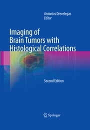Imaging of Brain Tumors with Histological Correlations ebook by
