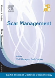 Scar Management - ECAB ebook by