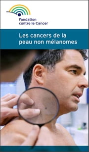 Les cancers de la peau non mélanomes - Une brochure de la Fondation contre le Cancer ebook by Fondation contre le cancer