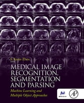 Medical Image Recognition, Segmentation and Parsing - Machine Learning and Multiple Object Approaches ebook by S. Kevin Zhou