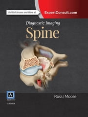 Diagnostic Imaging: Spine ebook by Jeffrey S. Ross,Kevin R. Moore