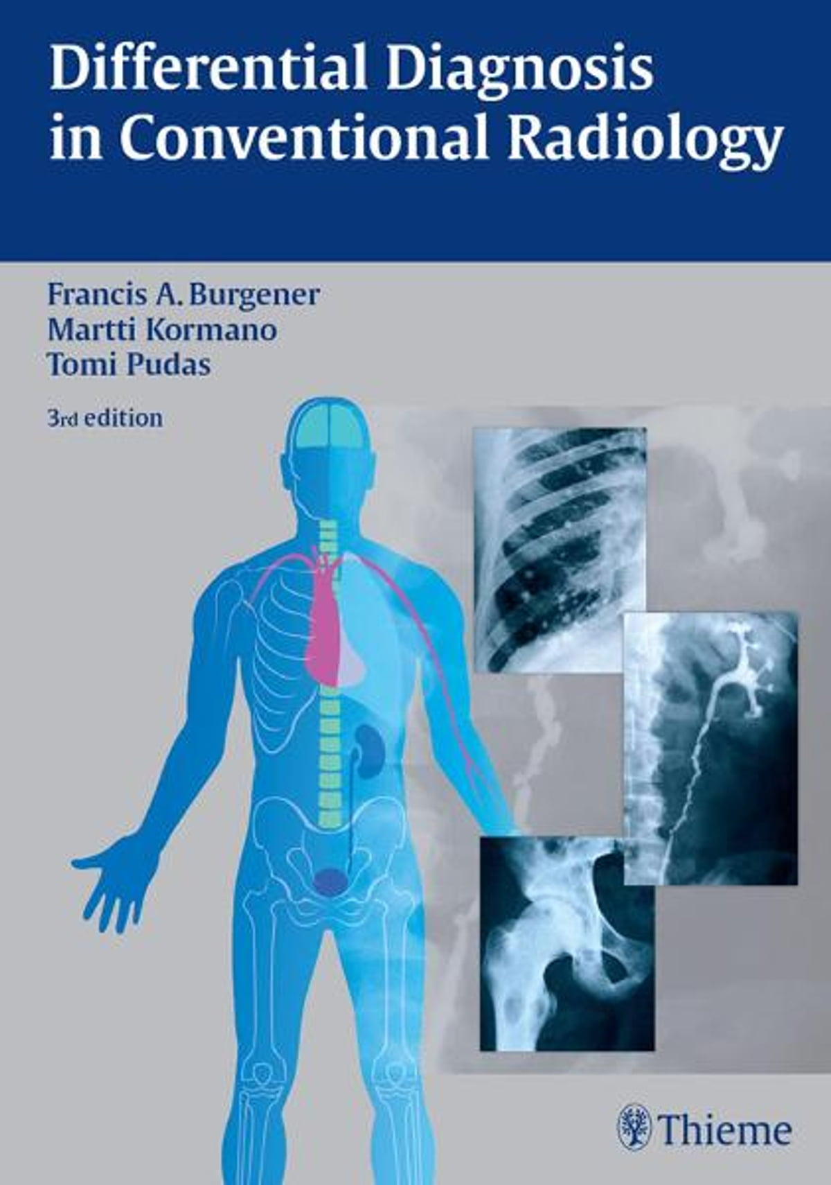 Differential Diagnosis in Conventional Radiology eBook by Martti ...