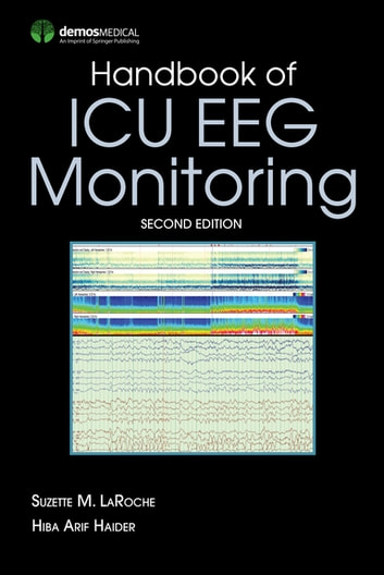 Handbook of ICU EEG Monitoring ebook by