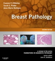 Breast Pathology - A Volume in the Series: Foundations in Diagnostic Pathology ebook by Frances P. O'Malley,Sarah E Pinder,Anne Marie Mulligan