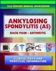 21st Century Ankylosing Spondylitis (AS) Sourcebook: Clinical Data for Patients, Families, and Physicians - Seronegative Spondyloarthropathy, Arthritis, Back Pain, Sacroiliitis, Related Conditions