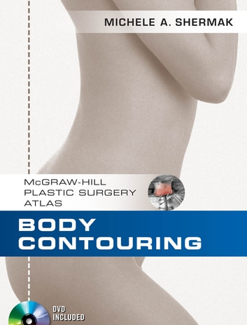 Body Contouring ebook by Michele A. Shermak