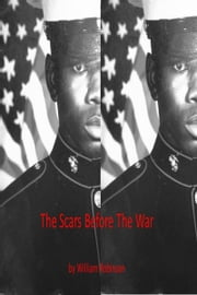 The Scars Before The War ebook by William Robinson