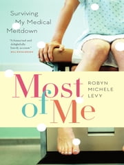 Most of Me - Surviving My Medical Meltdown ebook by Robyn Levy