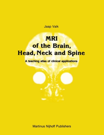 MRI of the Brain, Head, Neck and Spine - A teaching atlas of clinical applications ebook by Jaap Valk