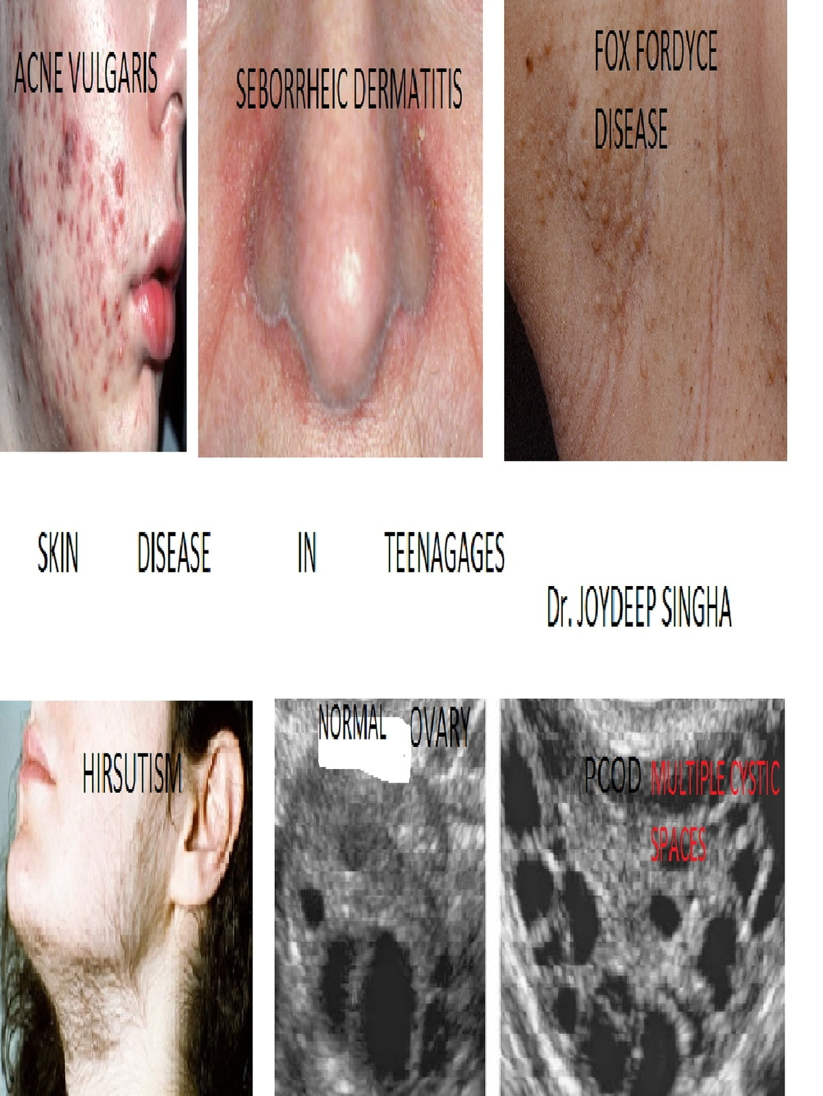 Skin Diseases In Teenages  ebook by Dr  Joydeep Singha - Rakuten Kobo