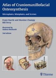 Atlas of Craniomaxillofacial Osteosynthesis - Microplates, Miniplates, and Screws ebook by Franz Haerle, Maxime Champy
