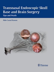 Transnasal Endoscopic Skull Base and Brain Surgery - Tips and Pearls ebook by Aldo C. Stamm