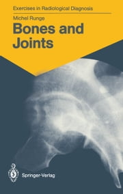 Bones and Joints - 170 Radiological Exercises for Students and Practitioners ebook by Michel Runge,Marie-Therese Wackenheim