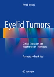 Eyelid Tumors - Clinical Evaluation and Reconstruction Techniques ebook by Arnab Biswas