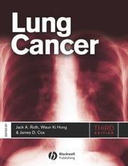 Lung Cancer ebook by Jack A. Roth,James D. Cox,Waun Ki Hong
