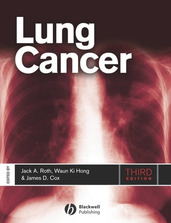 Lung Cancer ebook by
