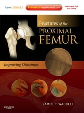 Fractures of the Proximal Femur: Improving Outcomes - Expert Consult ebook by James P. Waddell