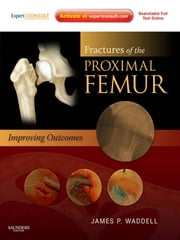 Fractures of the Proximal Femur: Improving Outcomes E-Book - Expert Consult ebook by James P. Waddell