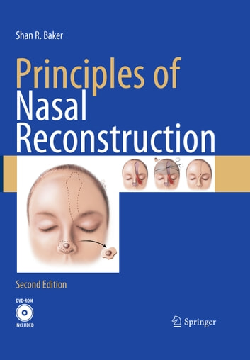 Principles of Nasal Reconstruction ebook by Shan R. Baker