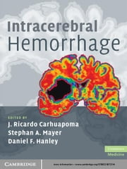 Intracerebral Hemorrhage ebook by J. Ricardo Carhuapoma,Stephan A. Mayer,Daniel F. Hanley