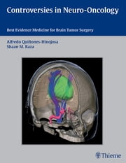 Controversies in Neuro-Oncology - Best Evidence Medicine for Brain Tumor Surgery ebook by Alfredo Quinones-Hinojosa,Shaan M. Raza