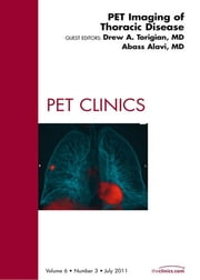 PET Imaging of Thoracic Disease, An Issue of PET Clinics ebook by Drew A. Torigian,Abass Alavi