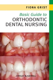 Basic Guide to Orthodontic Dental Nursing ebook by Fiona Grist