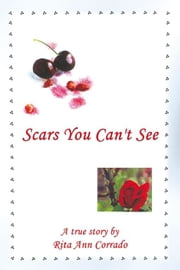 Scars You Can't See ebook by Rita Ann Corrado