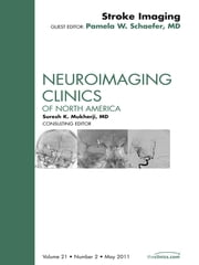 Stroke Imaging Update, An Issue of Neuroimaging Clinics ebook by Pamela W. Schaefer