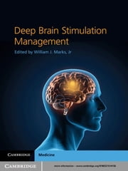 Deep Brain Stimulation Management ebook by William J. Marks, Jr Jr, MD