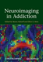 Neuroimaging in Addiction ebook by Bryon Adinoff,Elliot A. Stein