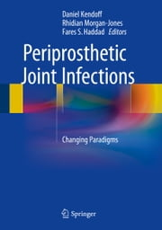 Periprosthetic Joint Infections - Changing Paradigms ebook by Daniel Kendoff,Rhidian Morgan-Jones,Fares S. Haddad