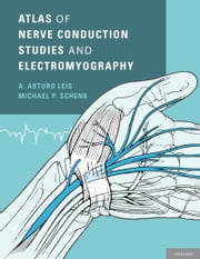 Atlas of Nerve Conduction Studies and Electromyography ebook by A. Arturo Leis,Michael P. Schenk