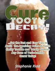 Cure Tooth Decay! : Get the Fast and Easy Tips to Avoid the Agonizing Pains of Tooth Cavity Trouble and Totally Dismiss Any Form of Periodontitis Onset Today! ebook by Stephanie Ridd