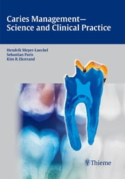 Caries Management - Science and Clinical Practice ebook by Hendrik Meyer-Lueckel,Sebastian Paris,Kim Ekstrand