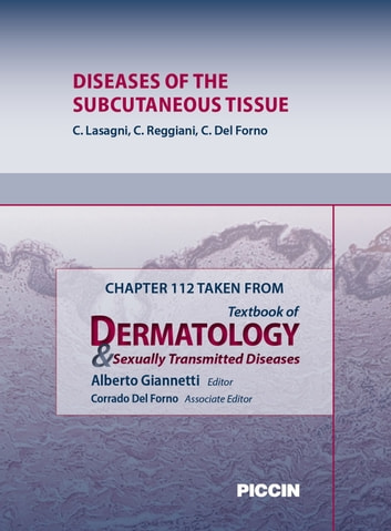 Chapter 112 Taken from Textbook of Dermatology & Sexually Trasmitted Diseases - DISEASES OF THE SUBCUTANEOUS TISSUE ebook by A.Giannetti,C. Lasagni,C. Reggiani