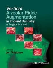 Vertical Alveolar Ridge Augmentation in Implant Dentistry - A Surgical Manual ebook by Len Tolstunov