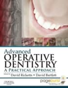 Advanced Operative Dentistry E-Book - A Practical Approach ebook by David Ricketts, BDS Hons, MSc Dist,...