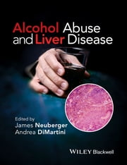 Alcohol Abuse and Liver Disease ebook by James Neuberger, Andrea DiMartini