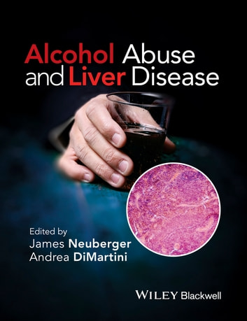 Alcohol Abuse and Liver Disease ebook by Andrea DiMartini