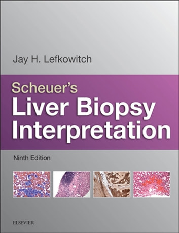 Scheuer's Liver Biopsy Interpretation E-Book ebook by Jay H. Lefkowitch, MD