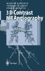 3D Contrast MR Angiography ebook by Martin R. Prince,Thomas M. Grist,Jörg F. Debatin