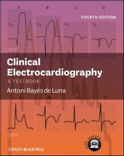 Clinical Electrocardiography - A Textbook ebook by Antoni Bayés de Luna
